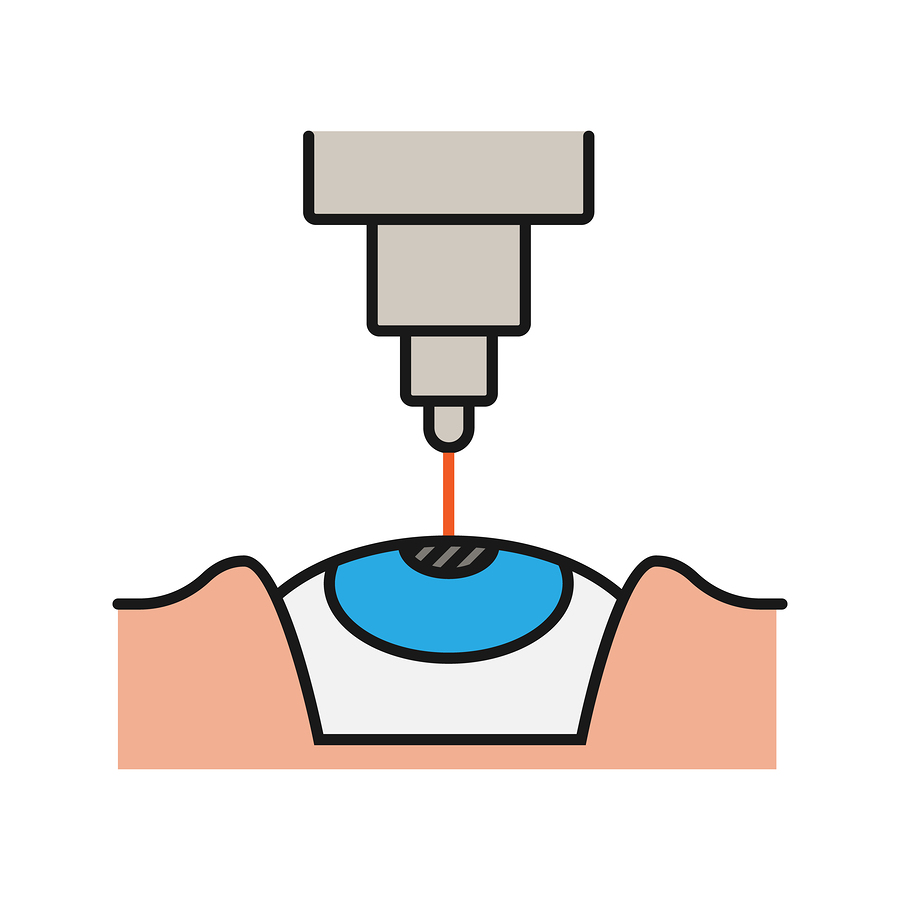 Common Litigation Issues Concerning LASIK Eye Surgeryy