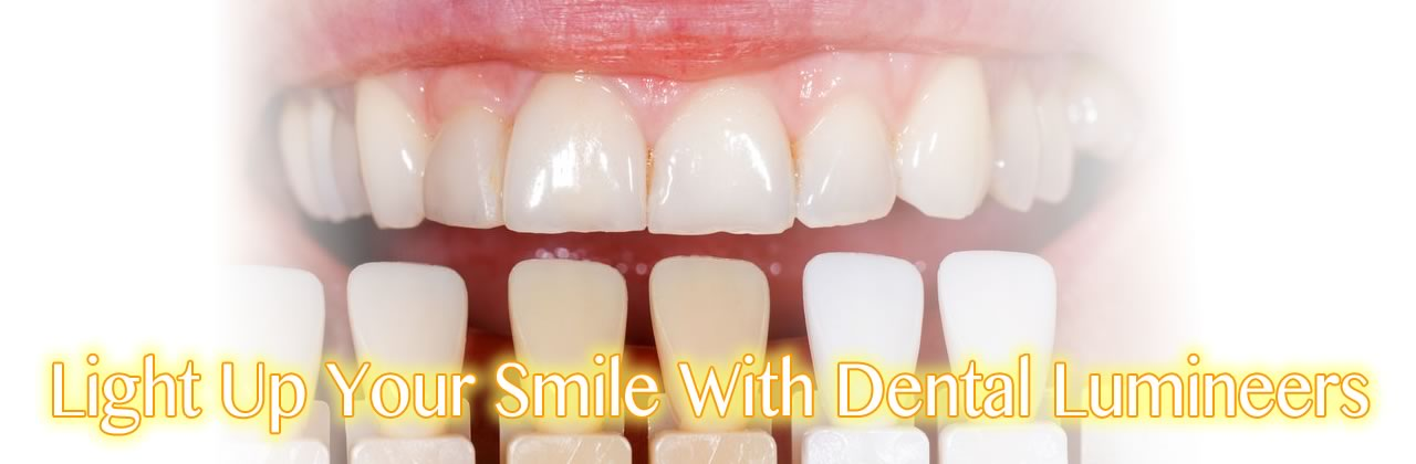 Light Up Your Smile With Dental Lumineers In California