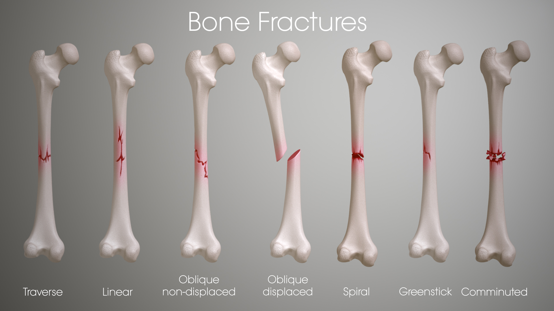 Different Types of Fractures – What You Must Know